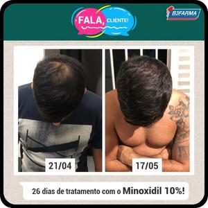 minoxidil antes e depois